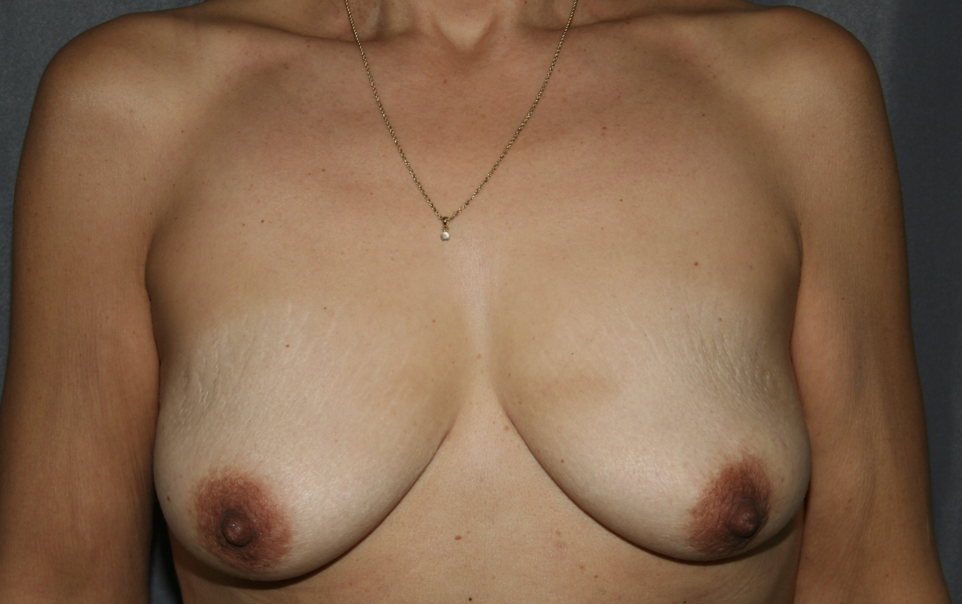 Before breast augmentation and lift. Note the asymmetry in the breast mound and the nipple areola complex. The left size is larger and lower.