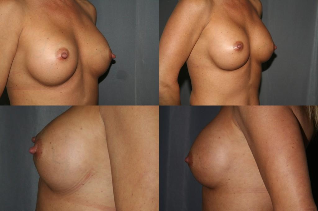implants and nipple sensation breast