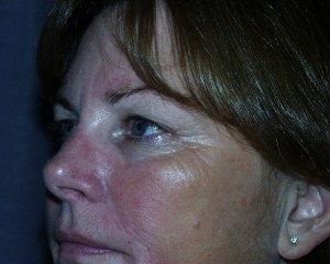 Before blepharoplasty, even with eyebrows unconsciously held up, the eyelid skin is resting on the eyelashes. Excess upper eyelid skin can progress to cover the lashes and block vision.
