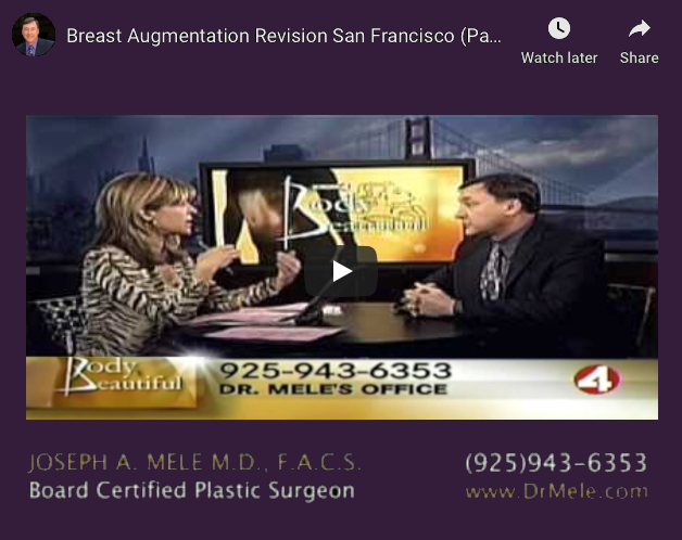 Breast Implant Revision Surgery Video Presentation with before and after pictures