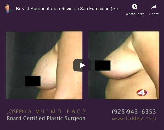 Breast Augmentation Revision Surgery Video Presentation with before and after pictures