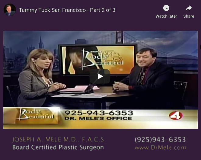Abdominoplasty Video Presentation with tummy tuck before and after photos