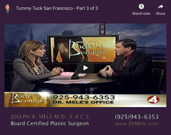 Tummy Tuck Video Presentation with abdominoplasty before and after photos