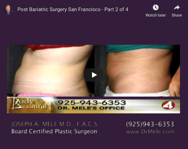 Post-Bariatric Plastic Surgery Video Presentation with before and after photos