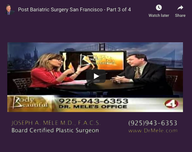 Post Bariatric Plastic Surgery Video Presentation