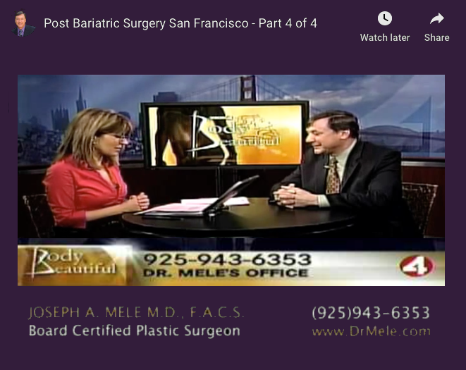 Post Bariatric Plastic Surgery Video Presentation with before and after pictures