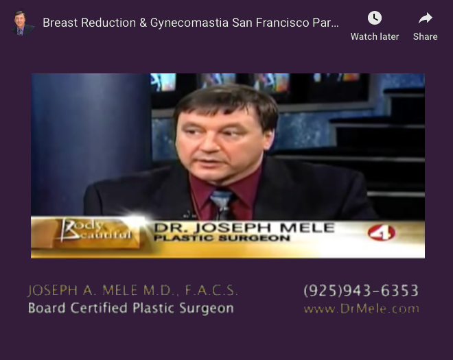 Gynecomastia Reduction Video Presentation (Male Breast Reduction)