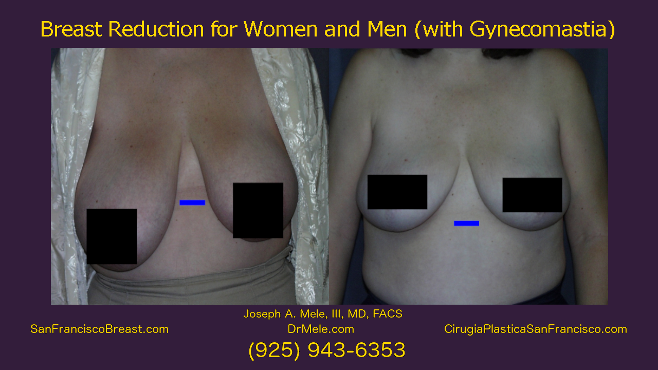 Breast Reduction Video Presentation with reduction mammoplasty before and after pictures