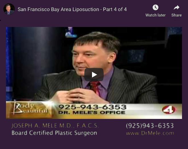 Liposuction Video Presentation with Tumescent Liposuction