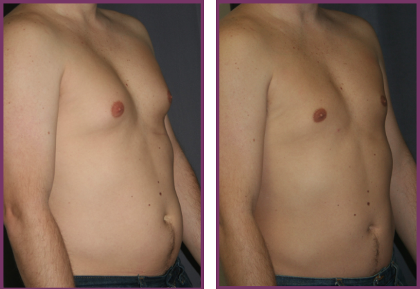 Gynecomastia Reduction Before and After Pictures (Male Breast Reduction)