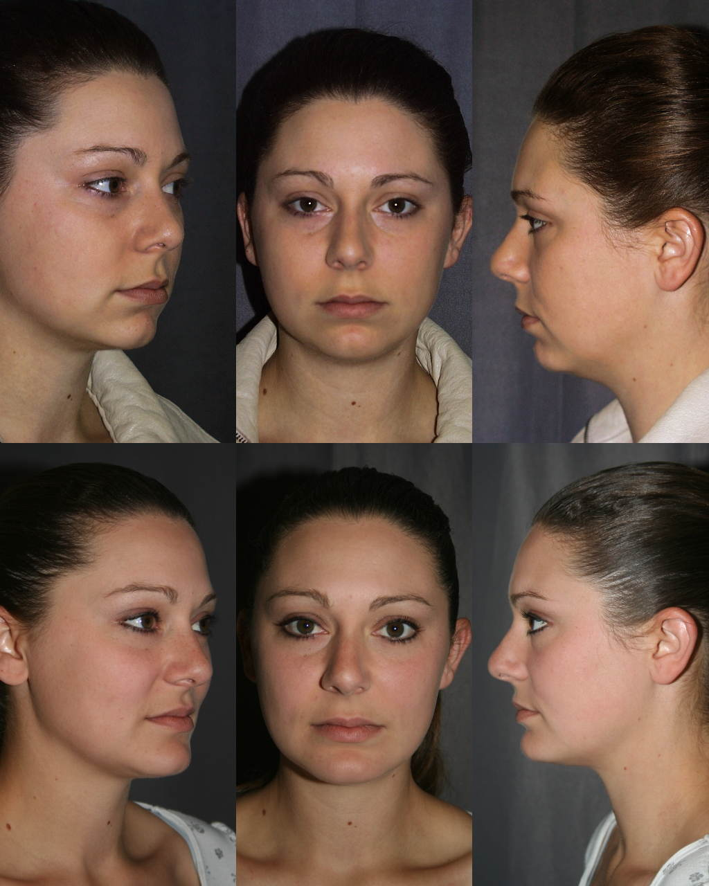 Chin Augmentation with Chin Implant. Before (Top Row) & After (Bottom Row)