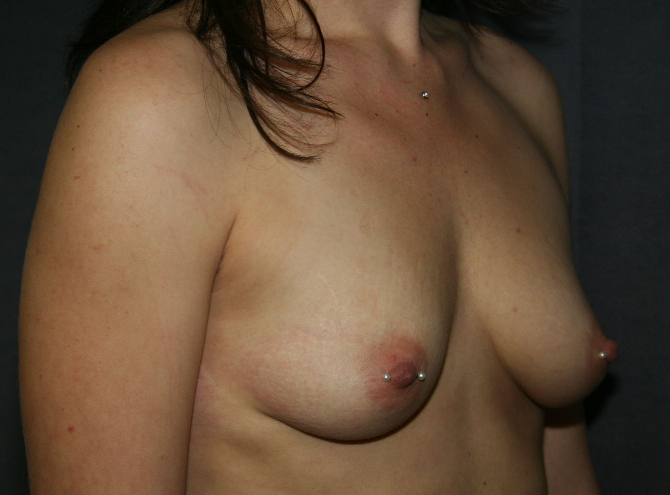Breast Augmentation with Nipple Piercing Before