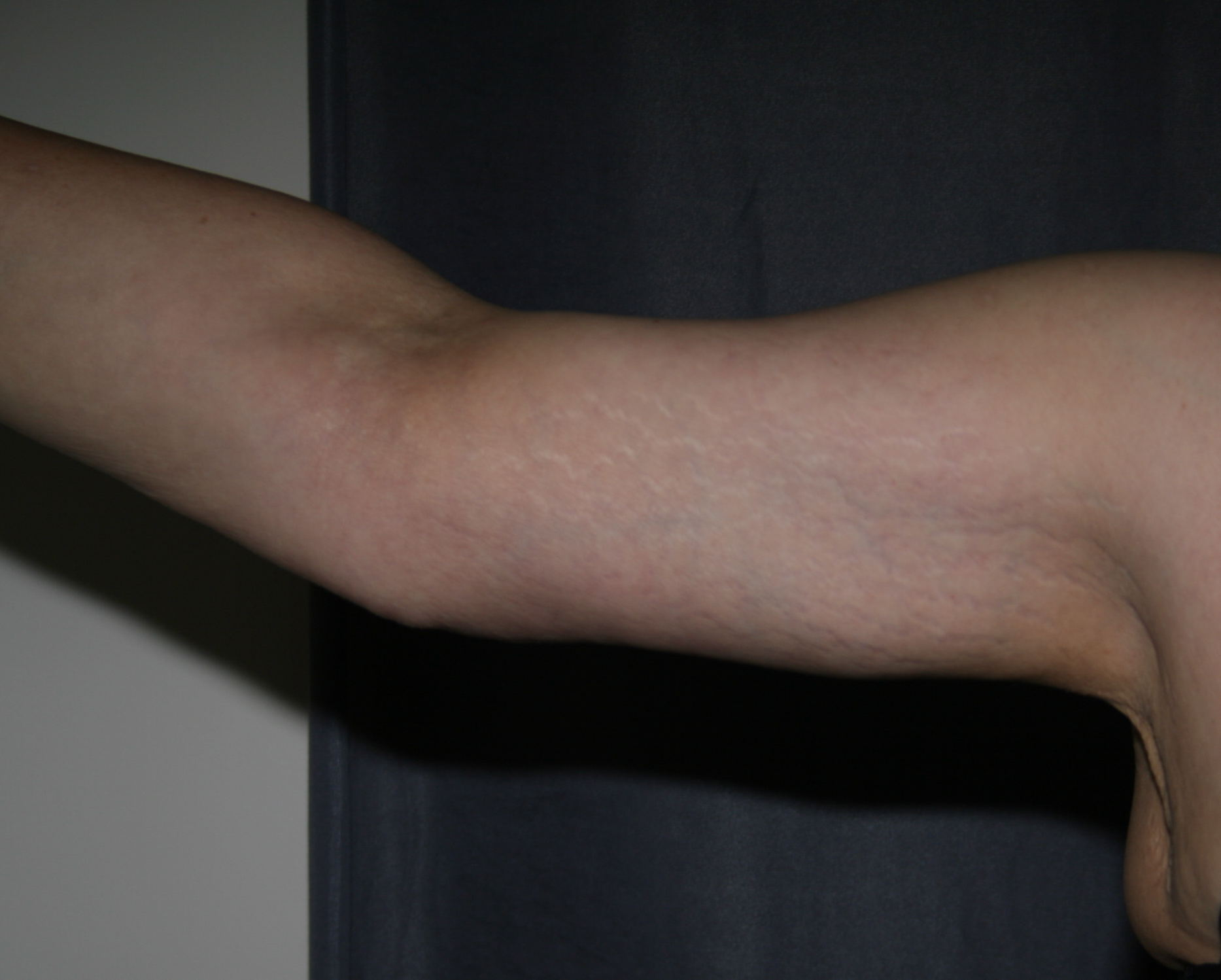 Right Arm after weight loss and after Arm Lift (Brachioplasty)