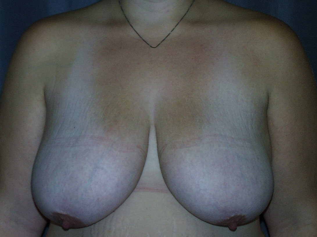 Breast Lift with Breast Reduction Before Picture