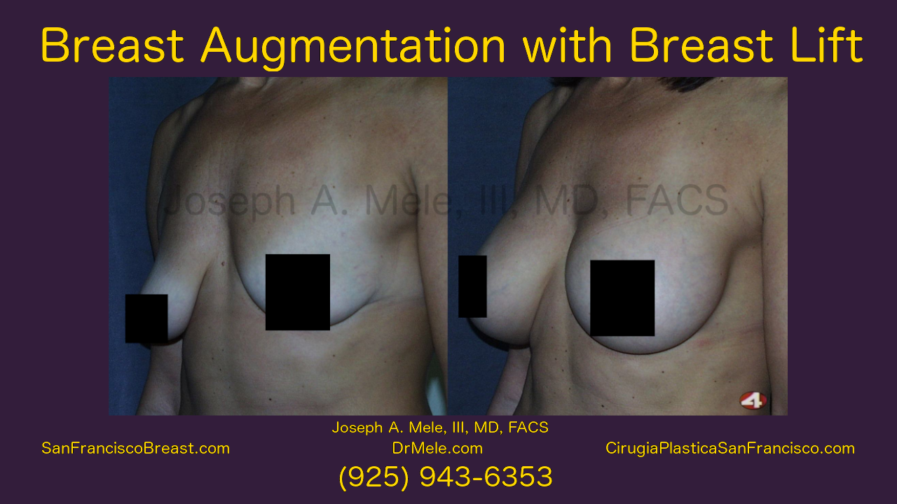 Breast Augmentation Lifts Video with Before and After Pictures
