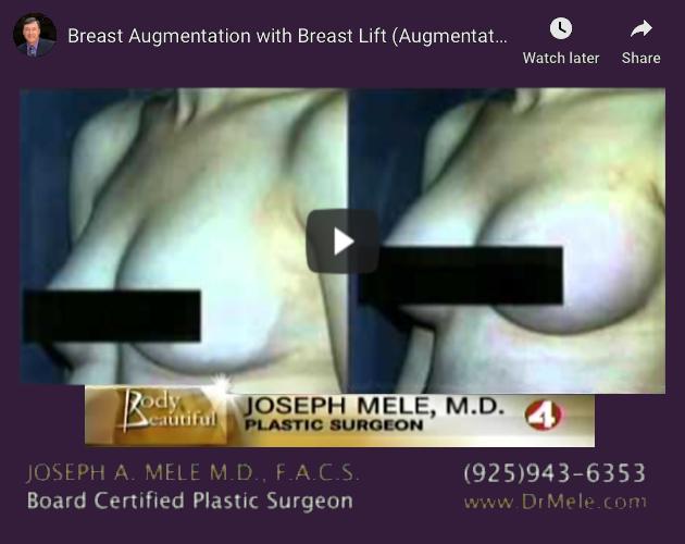 Breast Augmentation and Breast Lift Video Presentation (Mastopexy Augmentation)