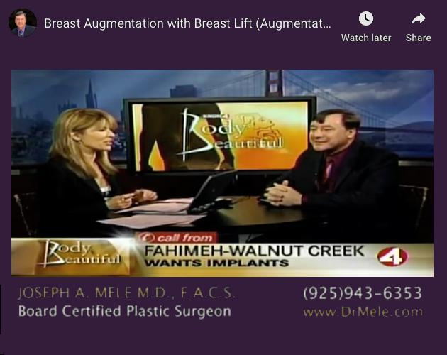 Breast Augmentation and Breast Lift Video Presentation