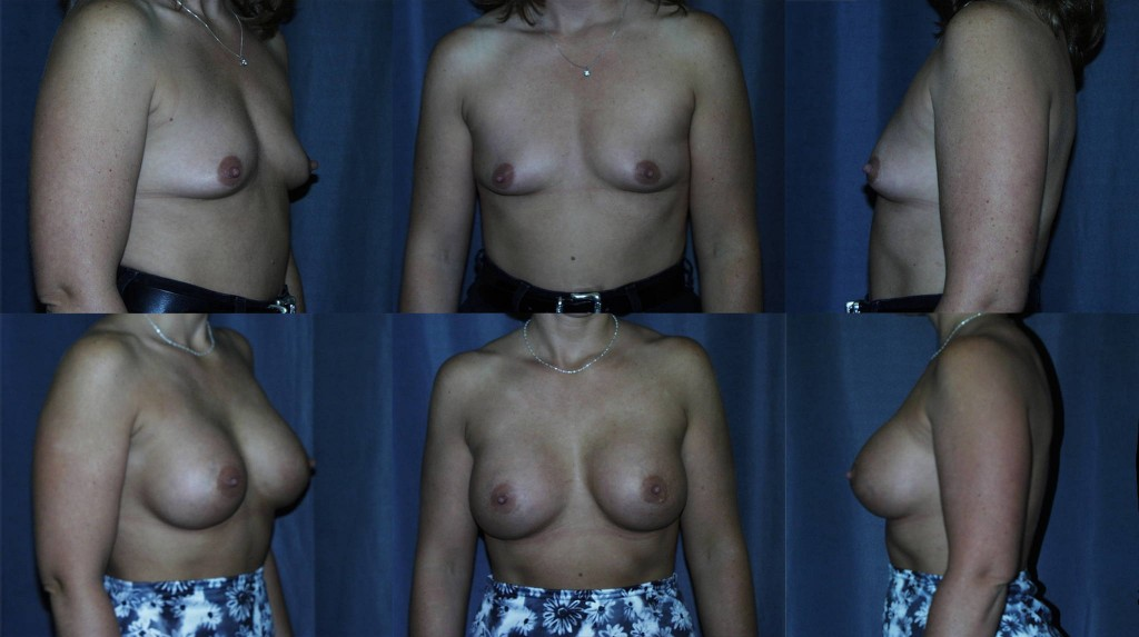 Tubular Breast Augmentation