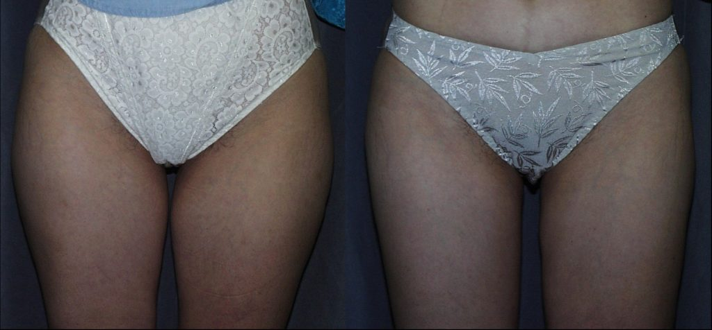 Liposuction (SAL) of the Thighs
