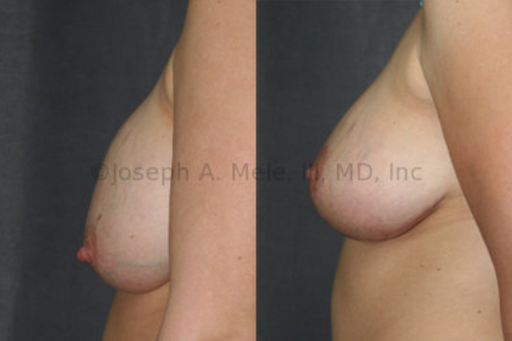 This patient had breast augmentation prior to becoming pregnant. <strong>Left:</strong> After pregnancy, the breast implant position remains unchanged; however, the breasts have dropped. <strong>Right:</strong> After breast augmentation revision, the breasts have been lifted and the breast implants exchanged, dramatically improving the breasts' shape and profile.
