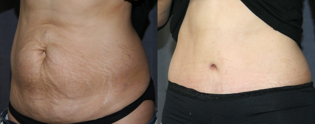 Tummy Tuck - Before and After Picture