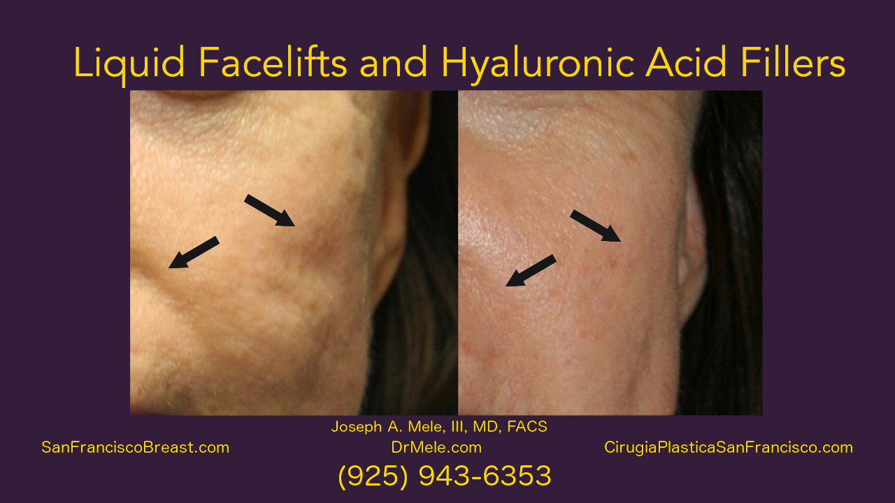 Liquid Facelifts Video and Hyaluronic Fillers before and after pictures
