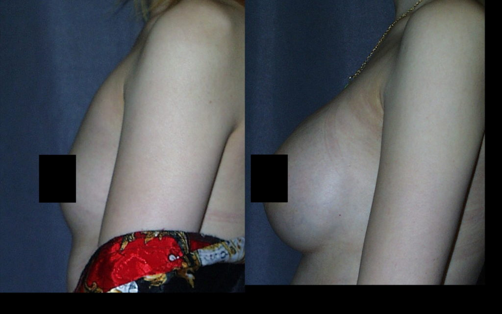Submuscular Breast Augmentation with Smooth Round Breast Implants
