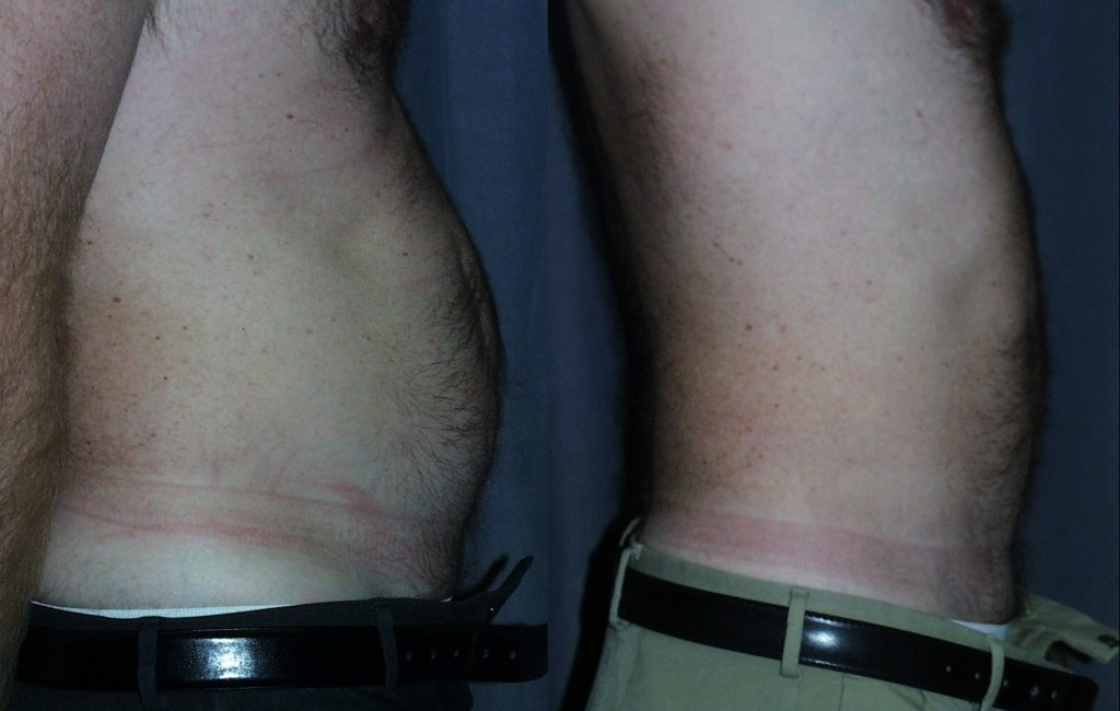 Liposuction of the Belly