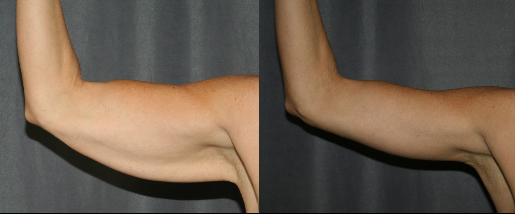 Arm Lift Before and After (Brachioplasty)
