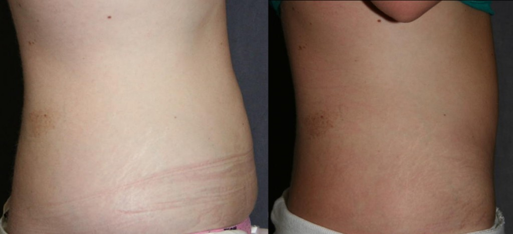 Mini Tummy Tuck Before and After (Mini Abdominoplasty)