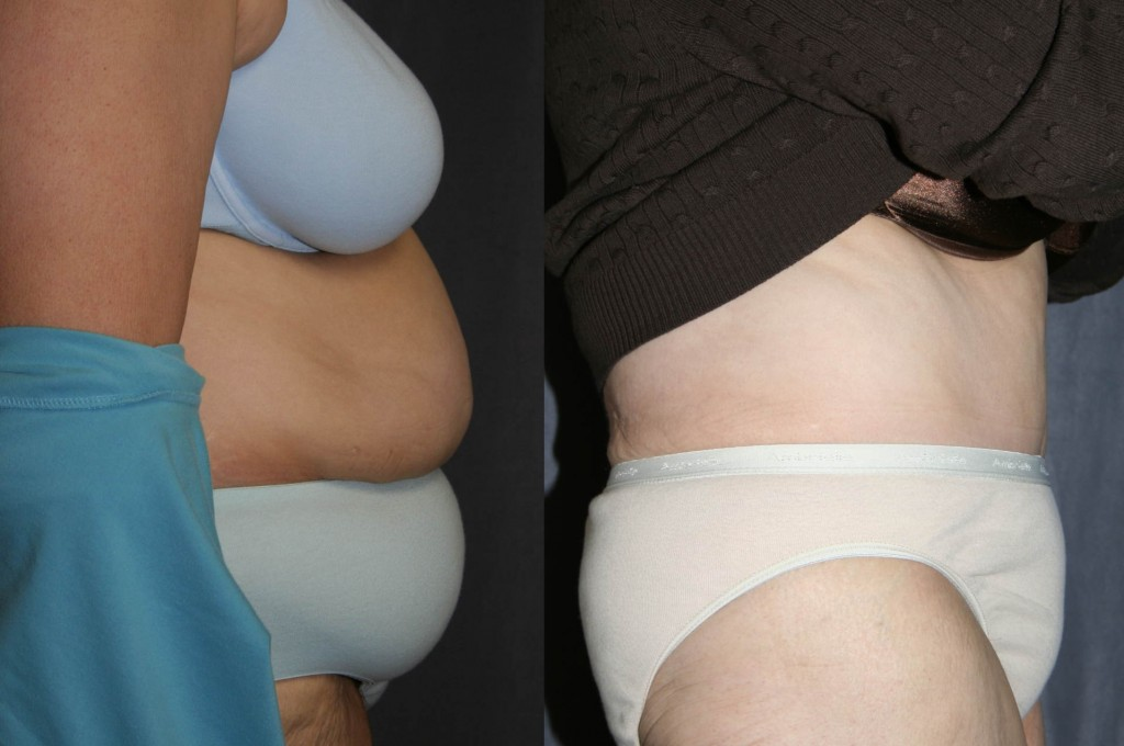 Post Bariatric Plastic Surgery - Tummy Tuck (Abdominoplasty)