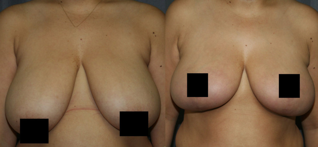 Breast Lift for Larger Breasts