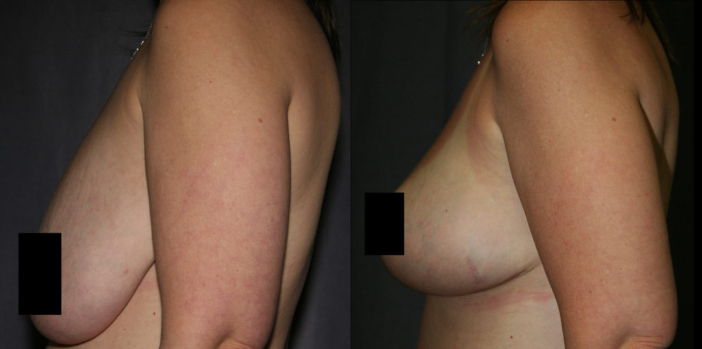 Mastopexy Before and After Pictures - Side View (Breast Lift)