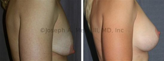 Breast Augmentation Mastopexy