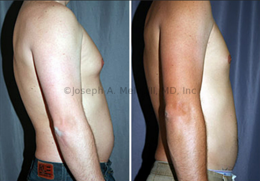 Softer forms of gynecomastia can be removed with liposuction alone. Liposuction was performed on the chest and abdomen in the before and after picture shown above.