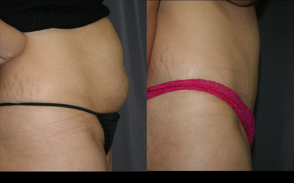 Tummy tuck before and after pictures: Extra fat and skin are removed, and the protruding abdominal wall muscles are tightened like an internal corset, for a dramatic improvement.