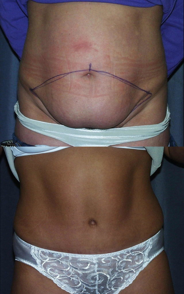Tummy tuck before and after pictures: The purple ink outlines the skin removed by the abdominoplasty. The internal tightening of the abdominal muscles flattens the belly and bring the rectus muscles back to the middle wear they belong.