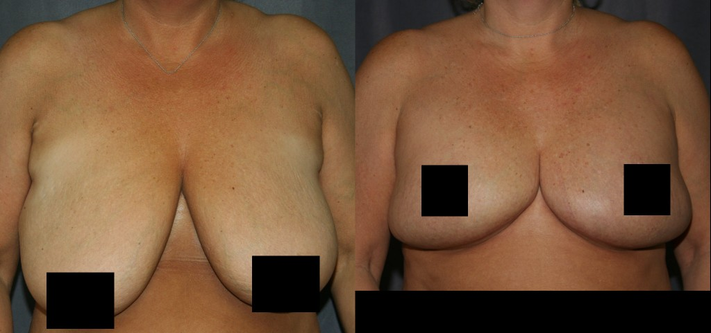 Breast Reduction surgery reduces the size and the discomfort associated with large breasts.