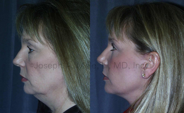 Rhytidectomy (Face Lift) Before and After Photos: In our 50 and 60's our faces begin to sag. Lifts like Face Lifts, Brow Lifts and Eyelid Lifts become even more popular.