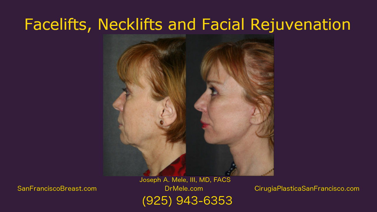 facelift, neck lift facial rejuvenation video with rhytidectomy before and after pictures