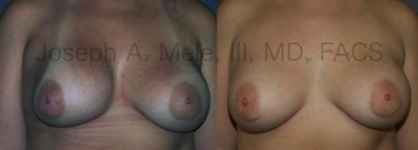 Breast Implant Malposition