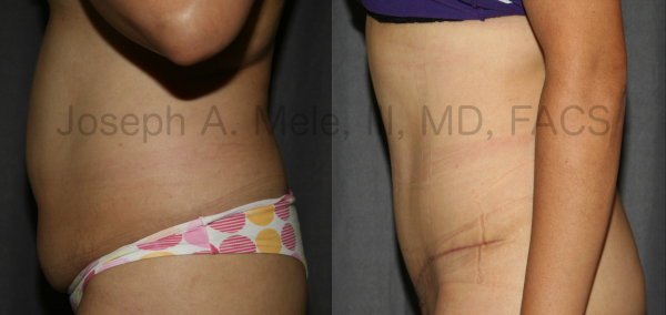 Tummy Tuck Early Scar