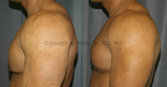 Gynecomastia Reduction: This man is in great shape and works hard at it. A small amount of Gynecomastia over the lower pole of the breast was hiding his true physique.