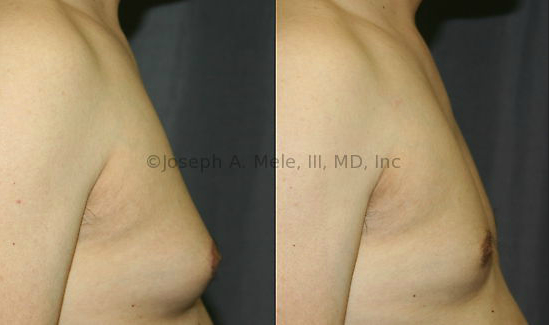 Adult Gynecomastia is unlikely to resolve on its own. Male Breast Reduction Surgery can help restore normal proportions and enhance the masculine chest.