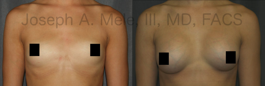 Choosing the right size for you is the most important aspect of Breast Augmentation.