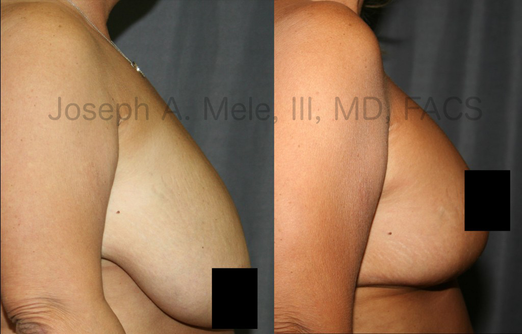 Breast Reduction relieves pain while improving physical appearance by restoring body proportions.