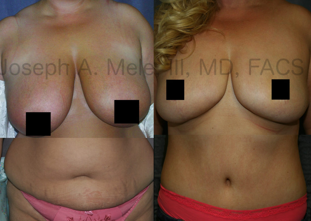 Observant readers may have noticed the similarities between the Breast Reduction and Tummy Tuck with Liposuction pictures shown above. They are in fact the same person. Here, the results of the separate procedures are combined.