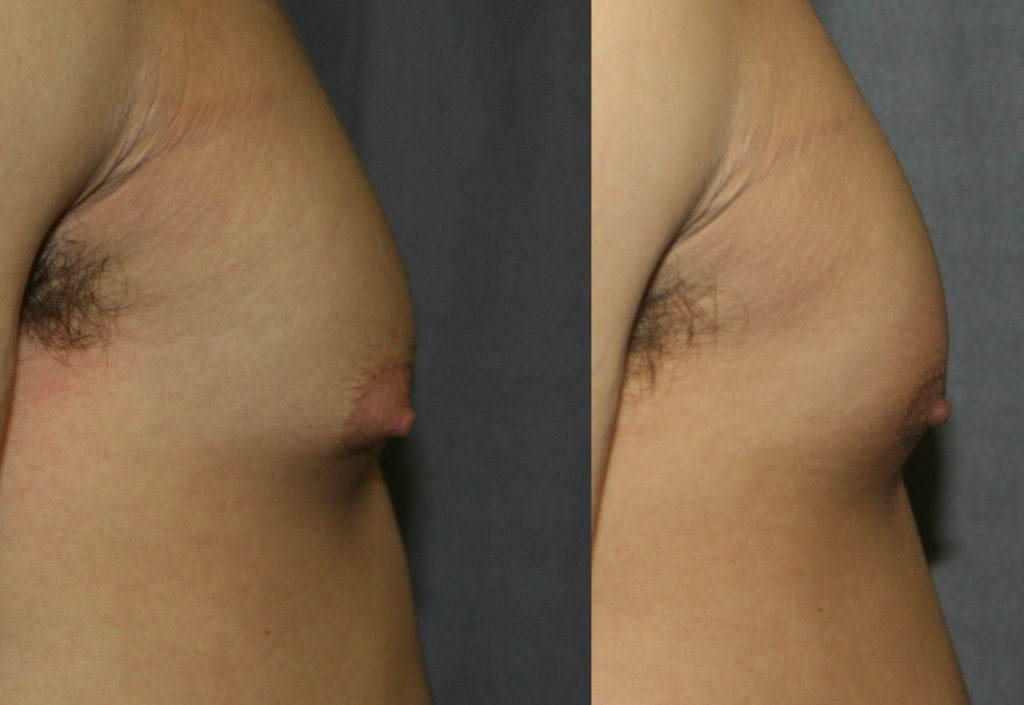 Gynecomastia isolated to the area beneath the nipple can cause puffy nipples. Gynecomastia Reduction Surgery can provide a smooth, more masculine profile.