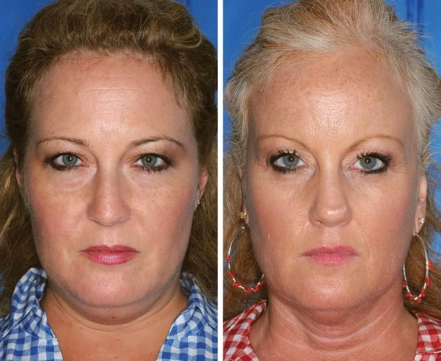 Can you tell which twin smokes? If you guessed the twin on the right, you are correct. Compared to her non-smoking sister in blue, the twin in red has advanced signs of aging including: marked loss of mid and lower face fullness, deeper nasolabial folds and smoker's lines around the lips.
