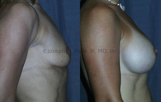 How Do I Find the Best Breast Augmentation Surgeon?